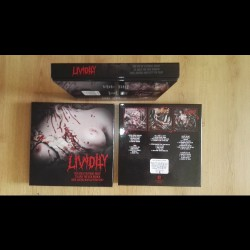 Lividity - Boxset - 3LP BOX